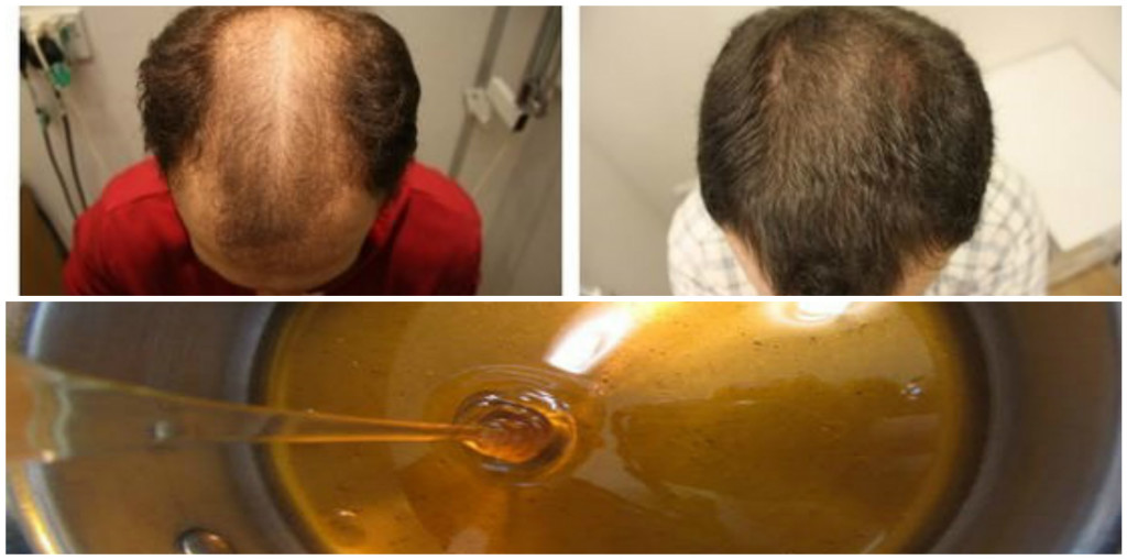 Baldness-Treatment-Natural-Recipe