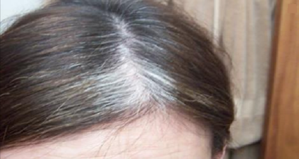 No Dermatologist Will Ever Tell You About This Gray Hair Problem And How To Solve It!