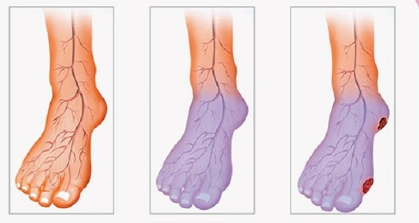 Poor Blood Circulation, Cold Legs and Hands Here is What You Can do to Solve This Problem!