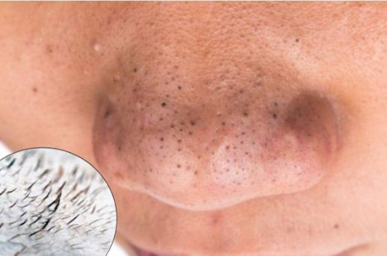 THIS One Easy Trick Can Get Rid Of All Those Annoying and Gross Blackheads Instantly and Will Make Your Face Shine!