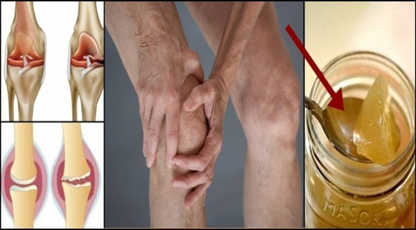 the-root-of-the-knee-pain-is-a-damage-of-the-cartilage-so-this-is-how-to-naturally-regenerate-it-600x332-600x332